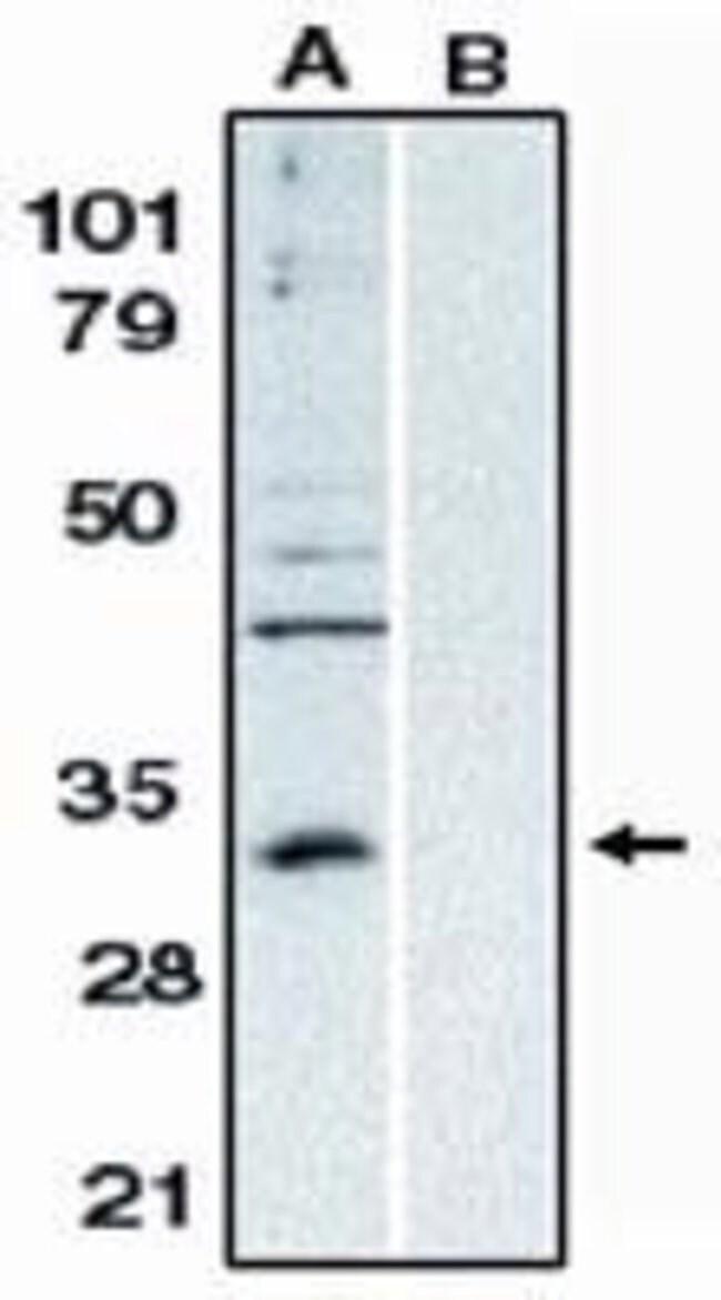 Bcl-10 Rabbit anti-Human, Polyclonal, Invitrogen 100 μg; Unconjugated:Antibodies