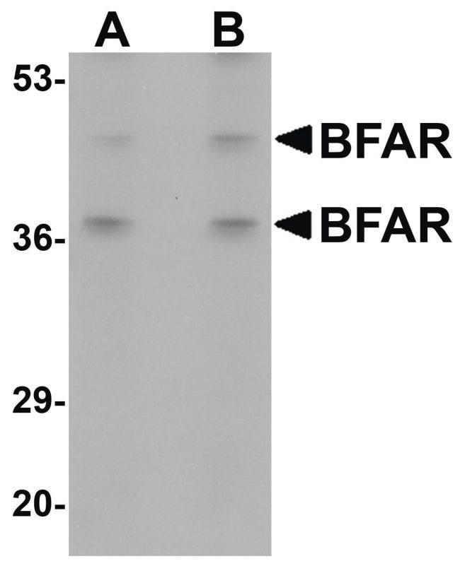BFAR Rabbit anti-Human, Mouse, Rat, Polyclonal, Invitrogen 100 µg;