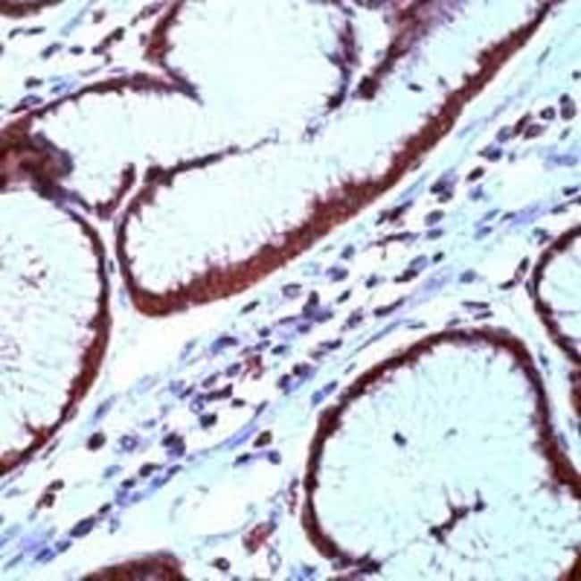 Survivin Rabbit anti-Human, Polyclonal, Invitrogen 1 mL; Unconjugated:Antibodies