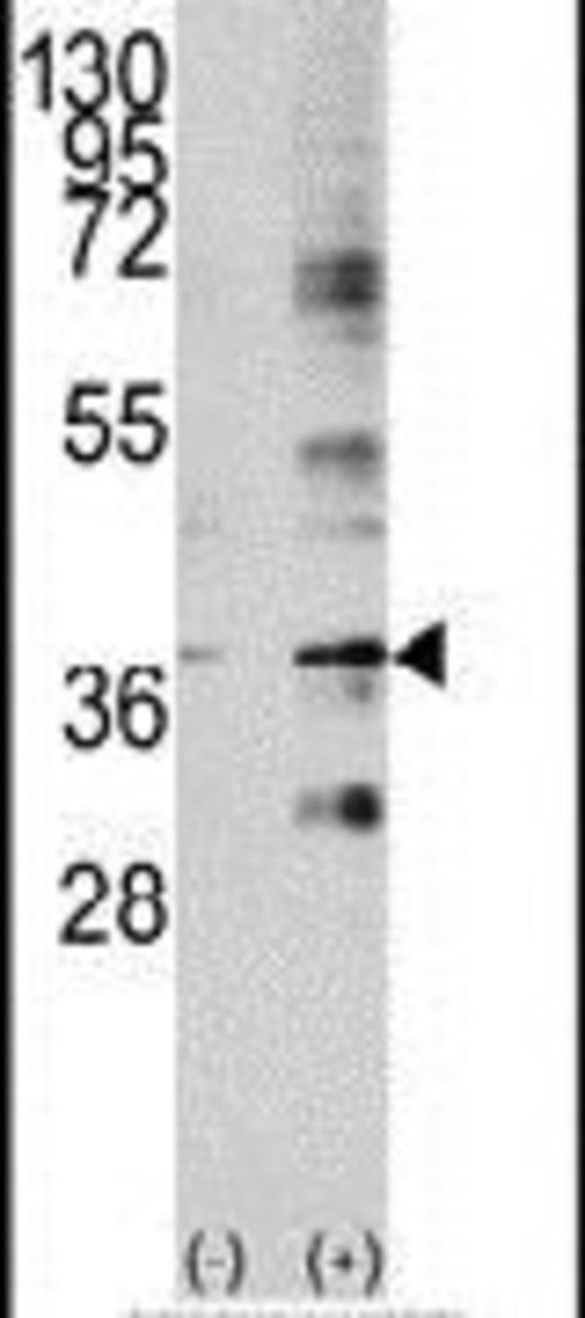 Livin Rabbit anti-Human, Polyclonal, Invitrogen 400 µL; Unconjugated