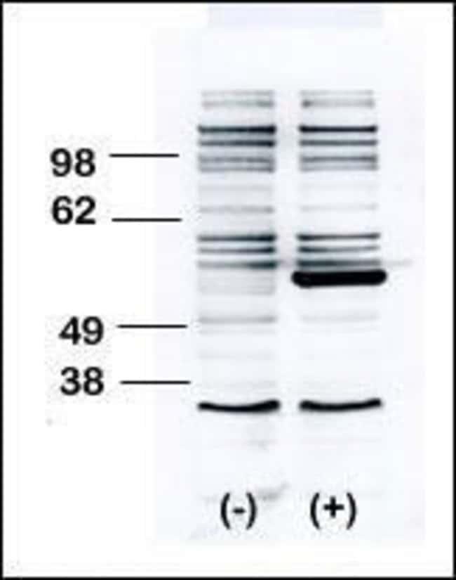 BLK Rabbit anti-Human, Mouse, Polyclonal, Invitrogen 400 µL; Unconjugated