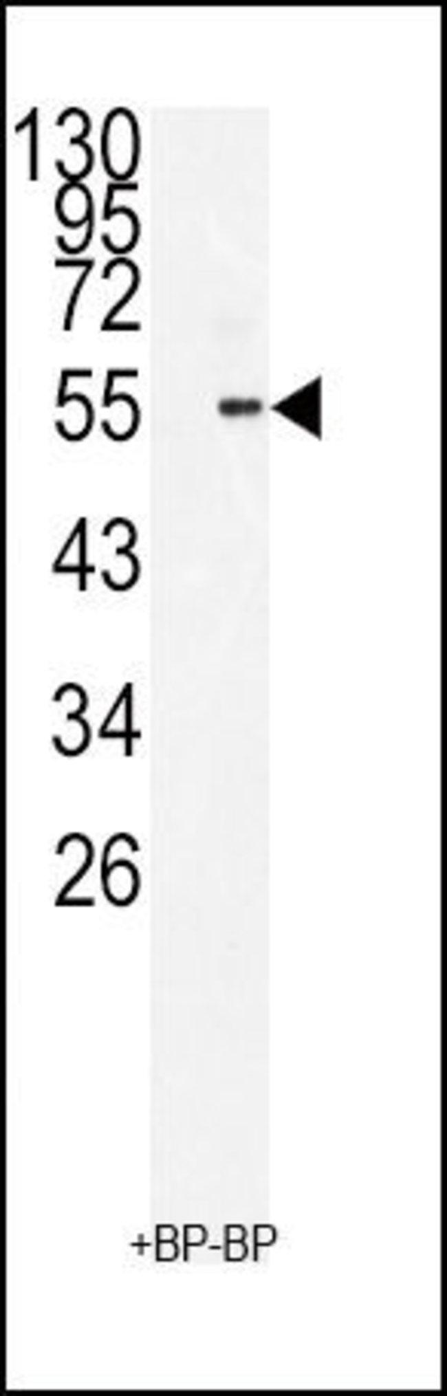 BMI-1 Rabbit anti-Human, Polyclonal, Invitrogen 400 µL; Unconjugated