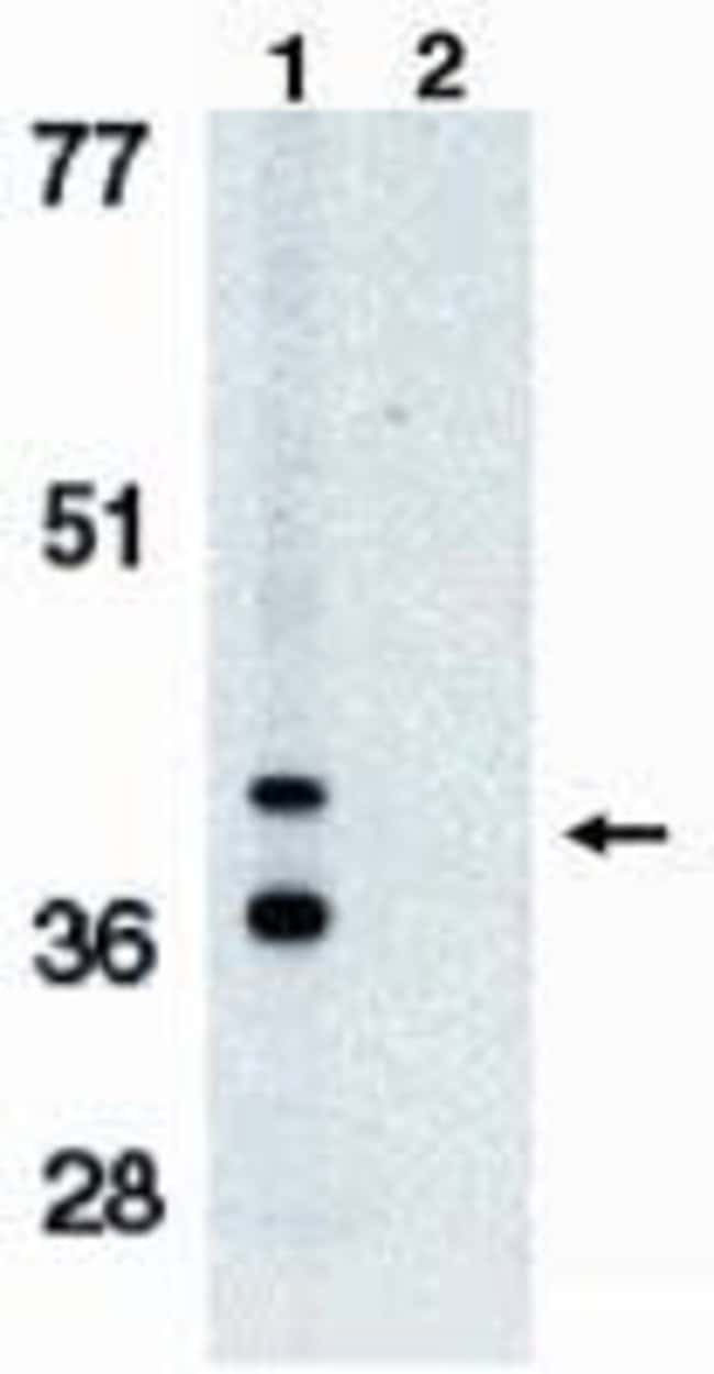 BNIP3L Rabbit anti-Human, Polyclonal, Invitrogen 100 µg; Unconjugated