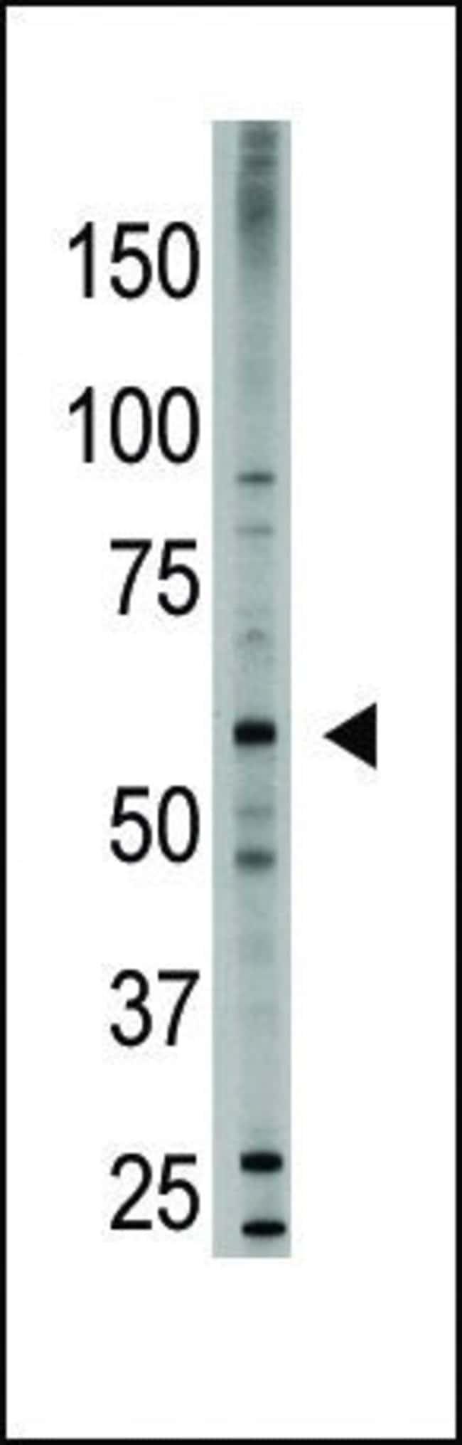 BMP-6 Rabbit anti-Human, Polyclonal, Invitrogen 400 µL; Unconjugated