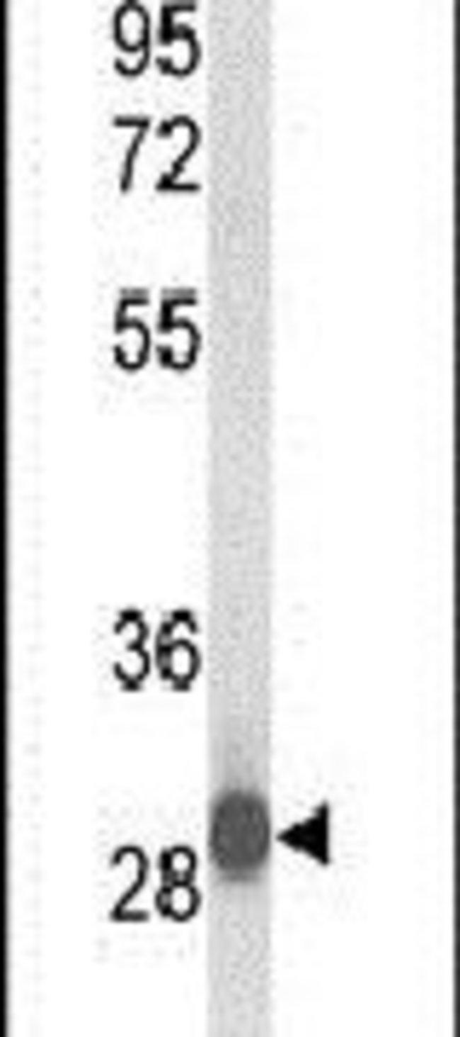 C15orf29 Rabbit anti-Human, Polyclonal, Invitrogen 400 µL; Unconjugated