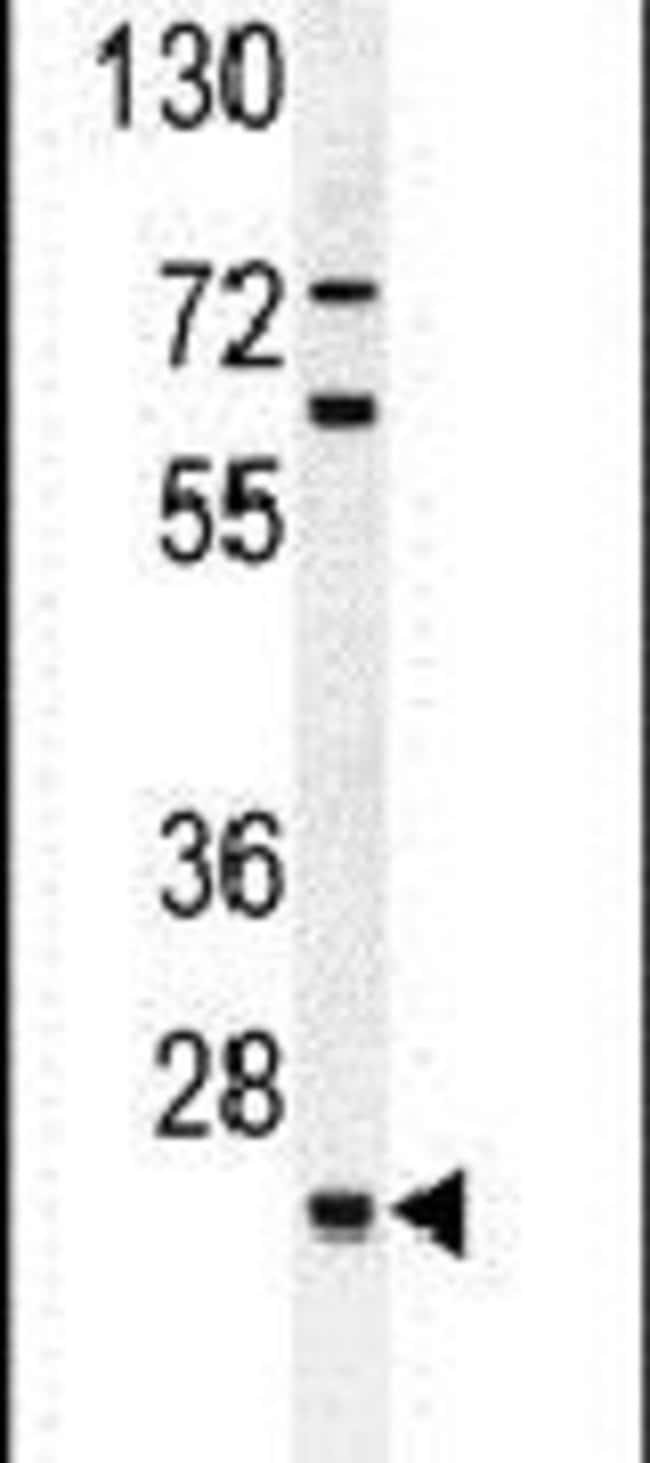 C15orf41 Rabbit anti-Human, Mouse, Polyclonal, Invitrogen 400 µL;