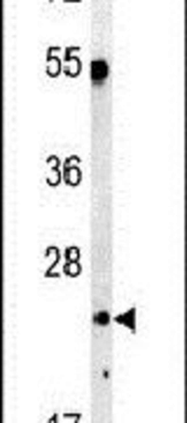 C1q Rabbit anti-Human, Polyclonal, Invitrogen 400 µL; Unconjugated