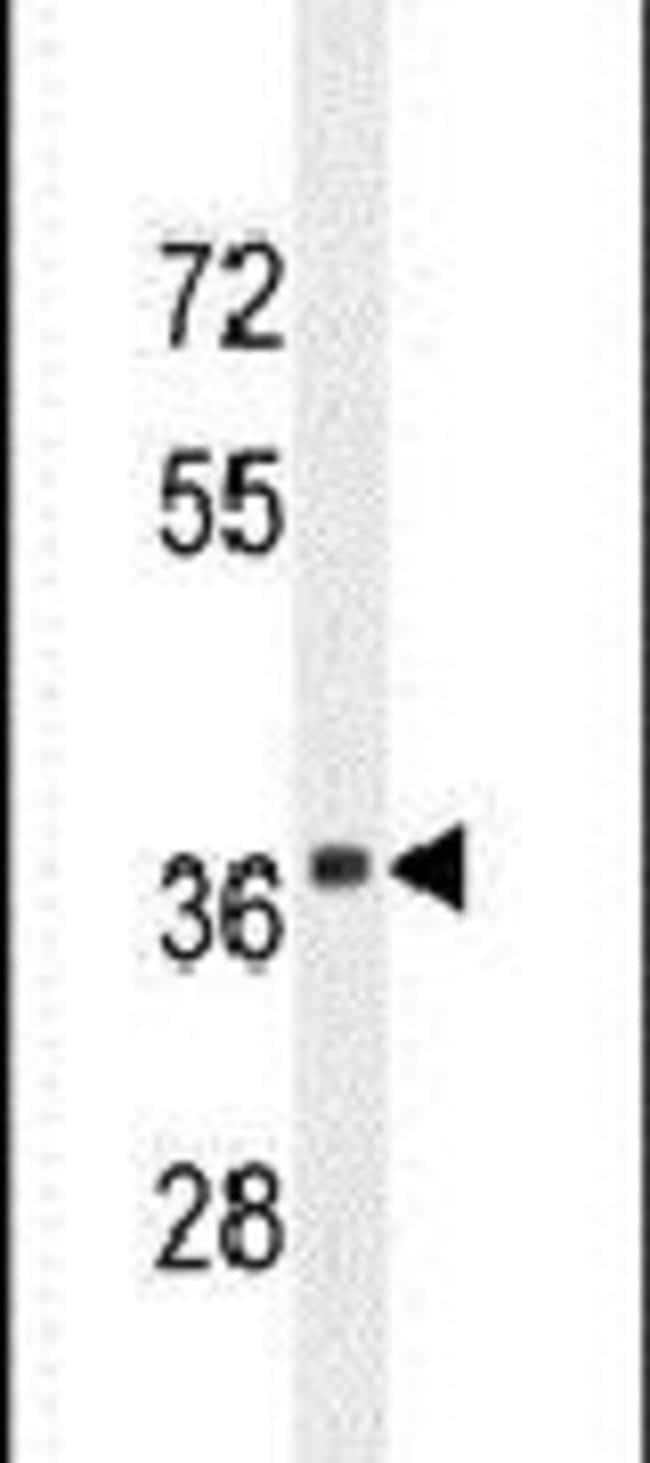 CADM1 Rabbit anti-Human, Mouse, Polyclonal, Invitrogen 400 µL; Unconjugated