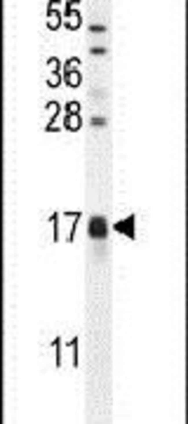 CAMK2N1 Rabbit anti-Human, Mouse, Polyclonal, Invitrogen 400 µL; Unconjugated