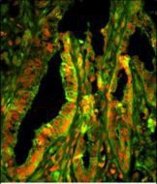 CAPZA1 Rabbit anti-Human, Polyclonal, Invitrogen 400 µL; Unconjugated