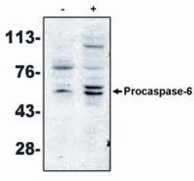 Caspase 6 Mouse anti-Human, Clone: MCH2 14 1-190, Invitrogen 100 µg;
