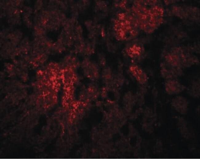 CCDC106 Rabbit anti-Human, Mouse, Rat, Polyclonal, Invitrogen 100 µg;