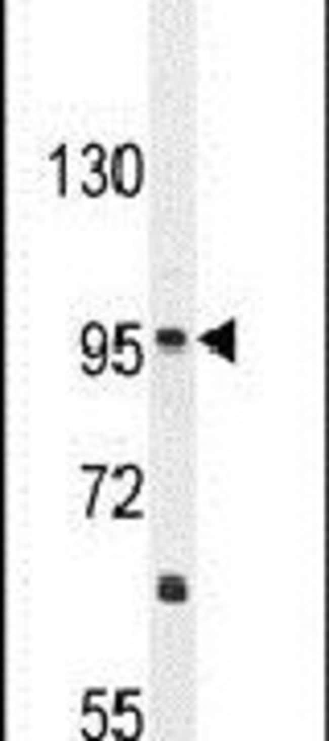 CCDC39 Rabbit anti-Hamster, Human, Mouse, Polyclonal, Invitrogen 400 µL;