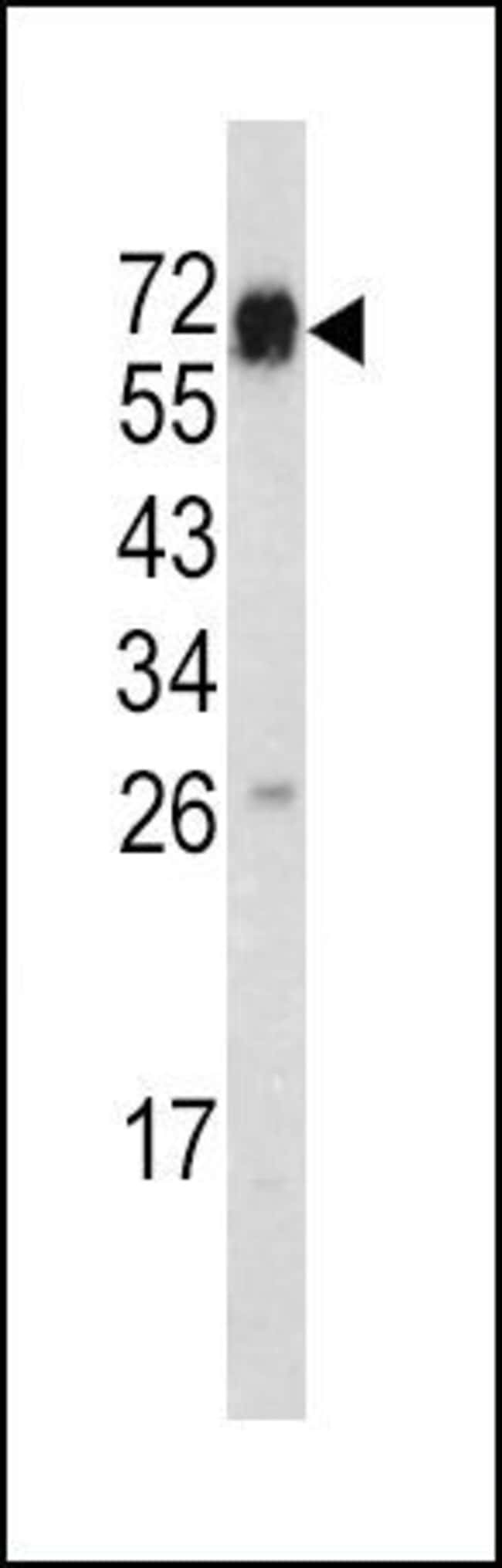CD105 Rabbit anti-Human, Mouse, Polyclonal, Invitrogen 400 µL; Unconjugated
