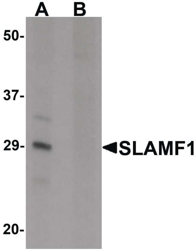 CD150 Rabbit anti-Human, Mouse, Rat, Polyclonal, Invitrogen 100 µg;