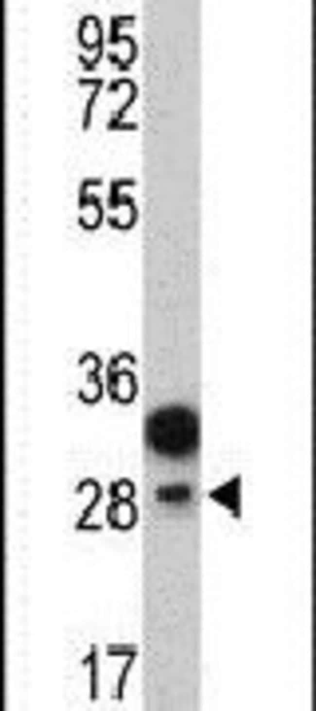 EPCR Rabbit anti-Human, Polyclonal, Invitrogen 400 µL; Unconjugated