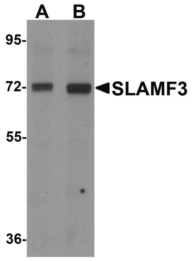 CD229 Rabbit anti-Human, Mouse, Rat, Polyclonal, Invitrogen 100 µg;