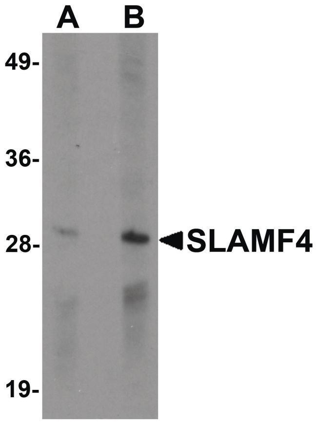 CD244 Rabbit anti-Human, Mouse, Rat, Polyclonal, Invitrogen 100 µg;