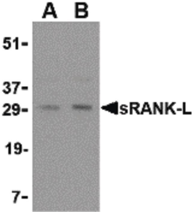 CD254 (RANK Ligand) Rabbit anti-Human, Mouse, Rat, Polyclonal, Invitrogen