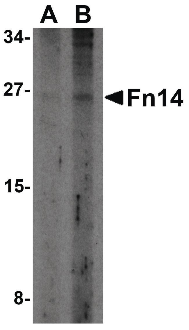 CD266 Rabbit anti-Human, Polyclonal, Invitrogen 100 µg; Unconjugated