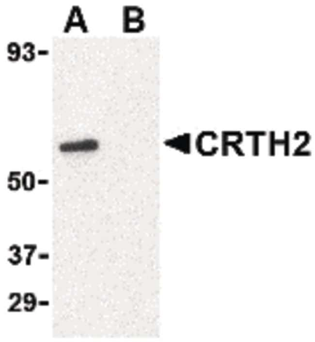 CRTH2 Rabbit anti-Human, Mouse, Rat, Polyclonal, Invitrogen 100 µg;