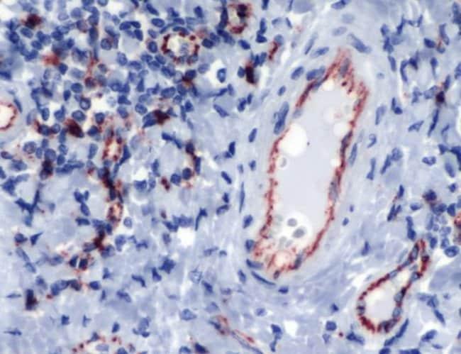 CD31 Rabbit anti-Human, Mouse, Porcine, Polyclonal, Invitrogen 1 mL; Unconjugated:Antibodies