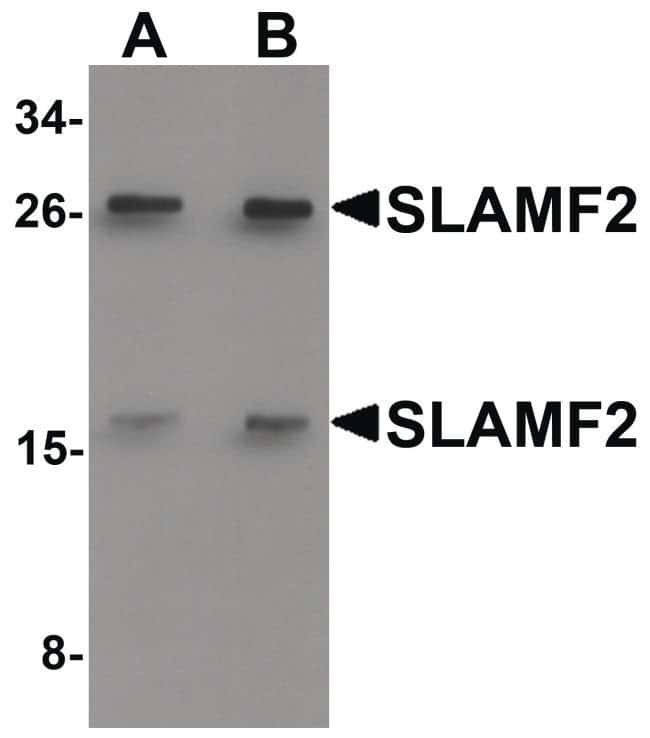 CD48 Rabbit anti-Human, Mouse, Rat, Polyclonal, Invitrogen 100 µg;