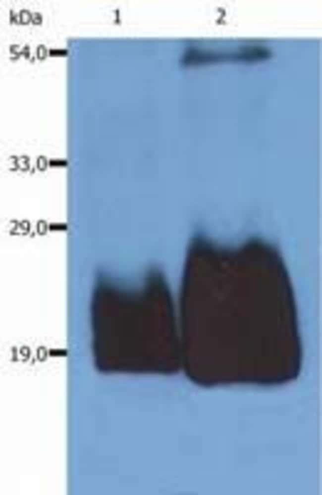 CD59 Mouse anti-Human, Mouse, Clone: MEM-43/5, Invitrogen 100 µg;
