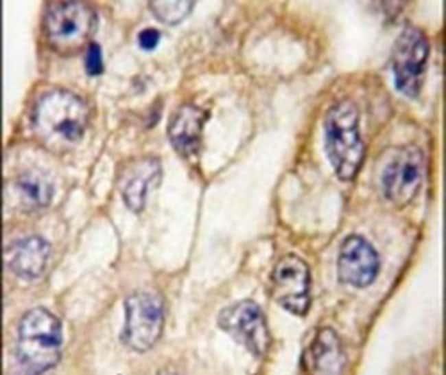CD8 alpha Rabbit anti-Human, Polyclonal, Invitrogen 400 µL; Unconjugated