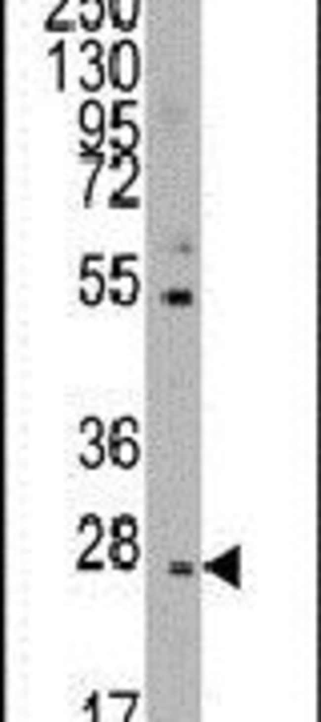 CD8 beta Rabbit anti-Human, Polyclonal, Invitrogen 400 µL; Unconjugated