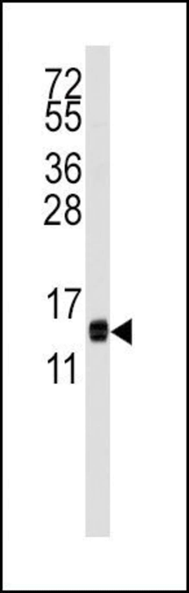 CDA Rabbit anti-Human, Mouse, Polyclonal, Invitrogen 400 µL; Unconjugated