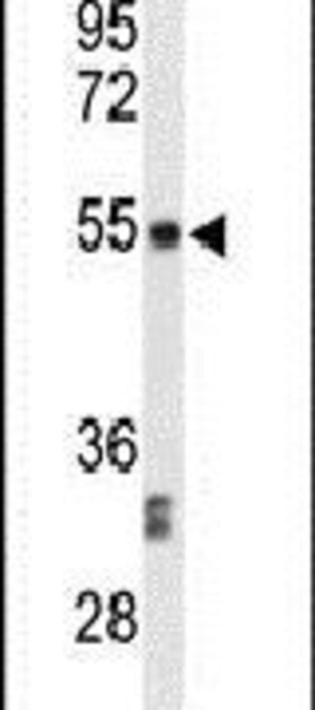 CENPI Rabbit anti-Human, Polyclonal, Invitrogen 400 µL; Unconjugated
