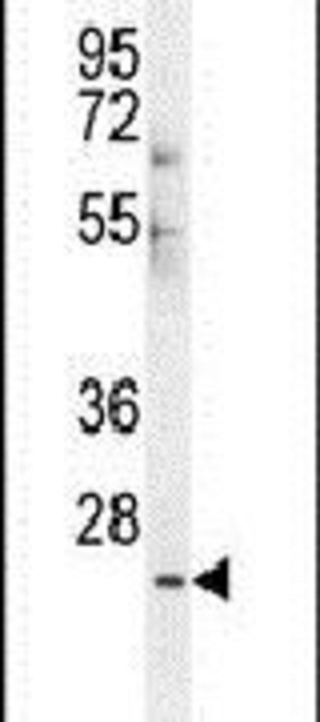 CES4 Rabbit anti-Human, Polyclonal, Invitrogen 400 µL; Unconjugated