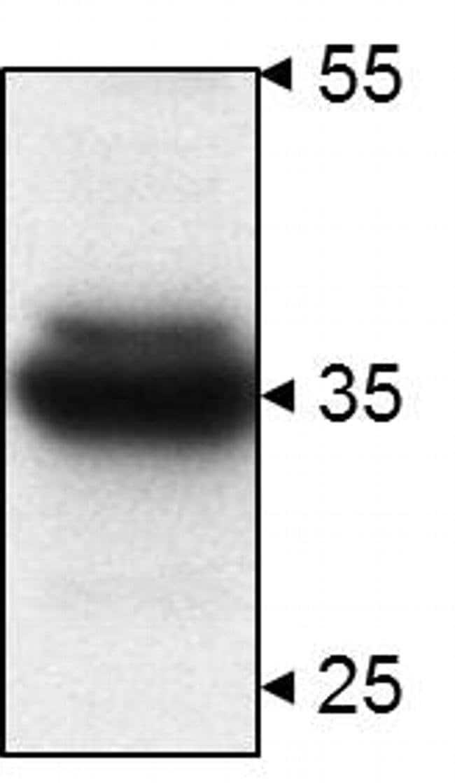 STUB1 Rabbit anti-Human, Mouse, Polyclonal, Invitrogen 100 µg; Unconjugated