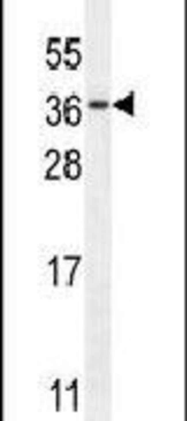 C11orf73 Rabbit anti-Hamster, Human, Polyclonal, Invitrogen 400 µL;