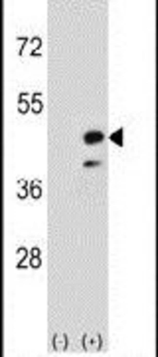 CKMT2 Rabbit anti-Human, Mouse, Polyclonal, Invitrogen 400 µL; Unconjugated