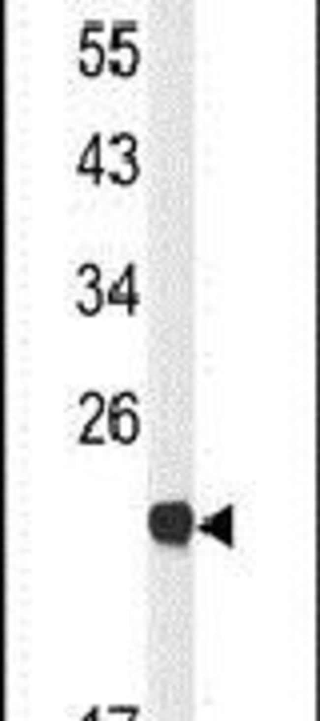 Claudin 23 Rabbit anti-Human, Mouse, Polyclonal, Invitrogen 400 µL;