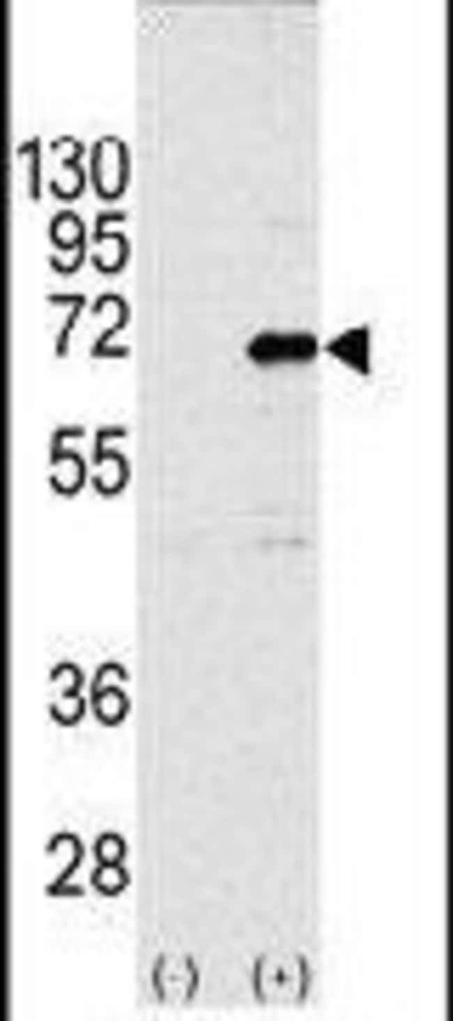 CNOT4 Rabbit anti-Human, Polyclonal, Invitrogen 400 µL; Unconjugated
