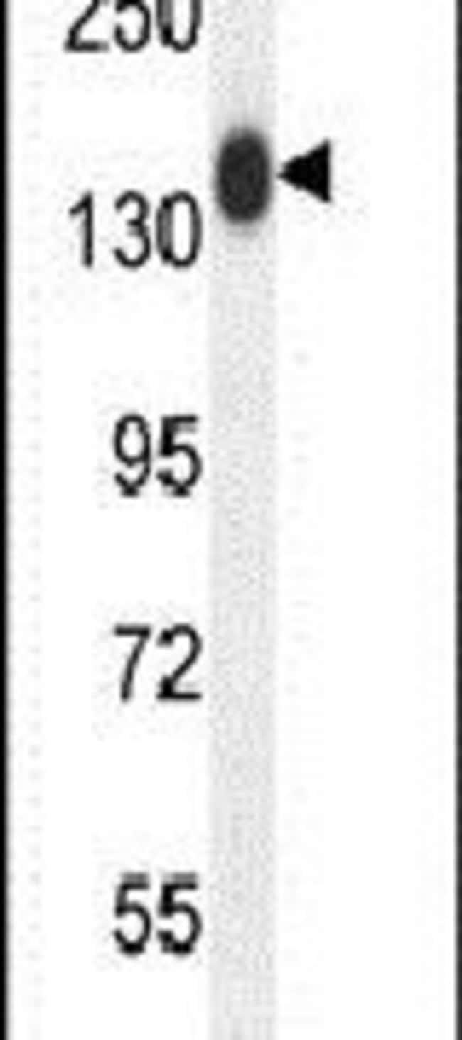 COL19A1 Rabbit anti-Human, Mouse, Polyclonal, Invitrogen 400 µL; Unconjugated
