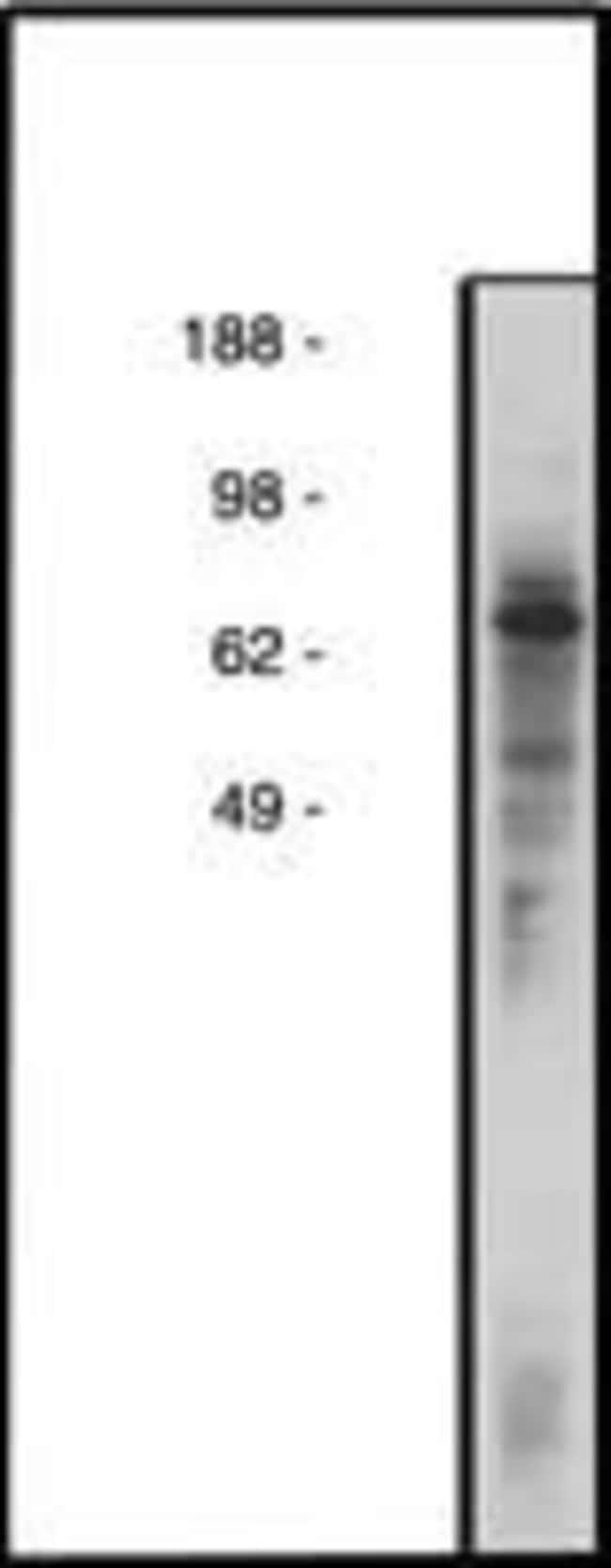 COL4A3BP, Polyclonal, Invitrogen 100µg; Unconjugated