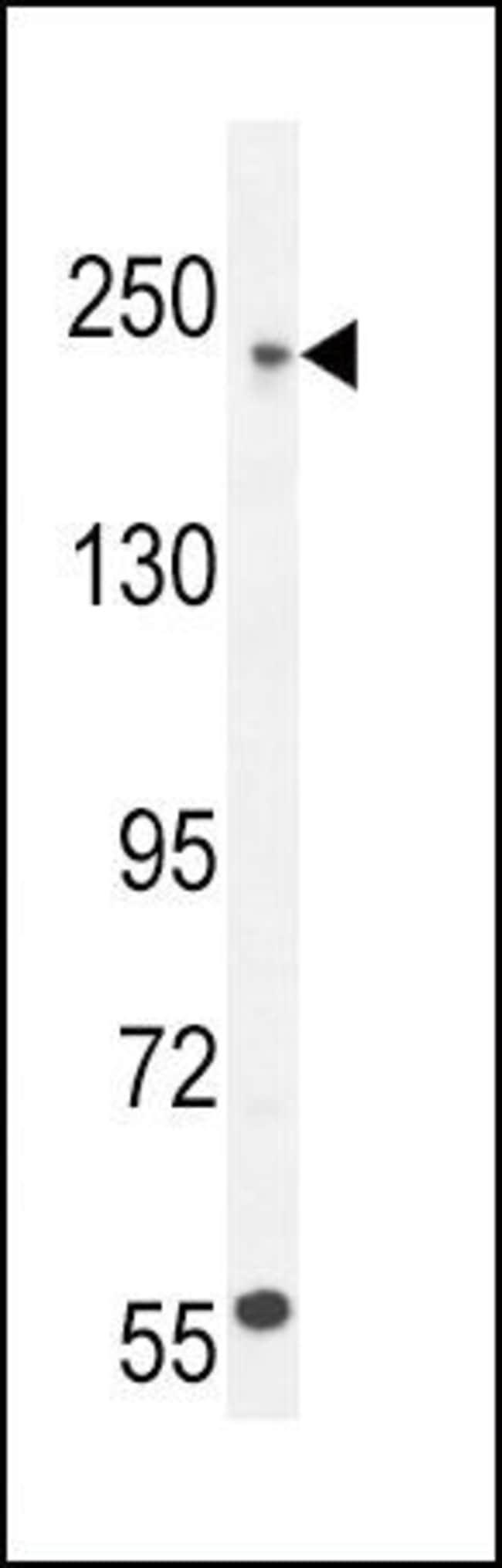 Collagen V Rabbit anti-Human, Mouse, Polyclonal, Invitrogen 400 µL;