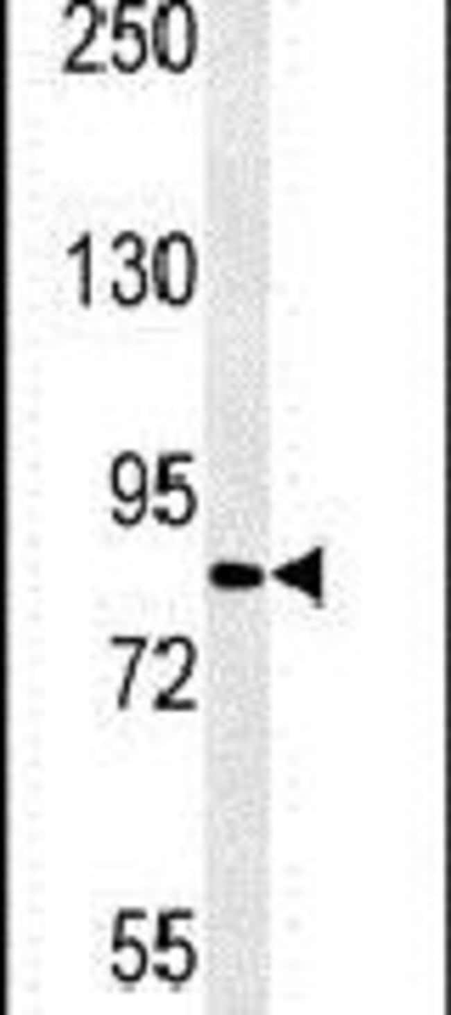 CPEB4 Rabbit anti-Human, Mouse, Polyclonal, Invitrogen 400 µL; Unconjugated