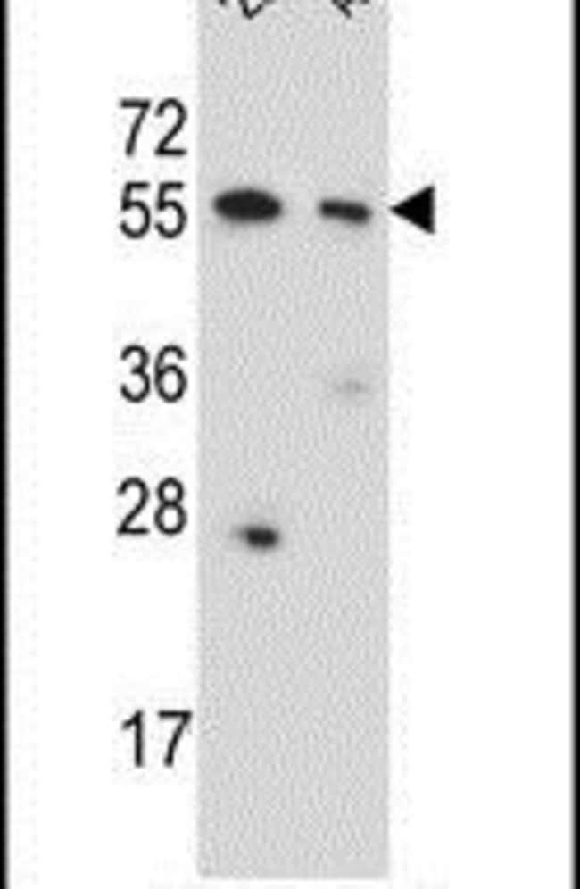 CPNE8 Rabbit anti-Human, Polyclonal, Invitrogen 400 µL; Unconjugated