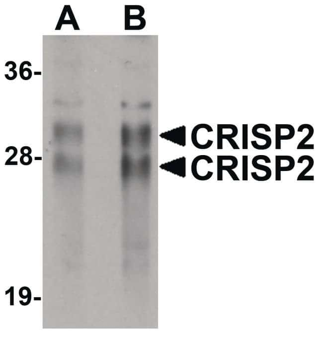 CRISP2 Rabbit anti-Human, Polyclonal, Invitrogen 100 µg; Unconjugated