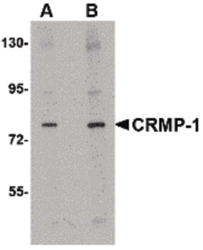 DRP1 Rabbit anti-Human, Mouse, Rat, Polyclonal, Invitrogen 100 µg;