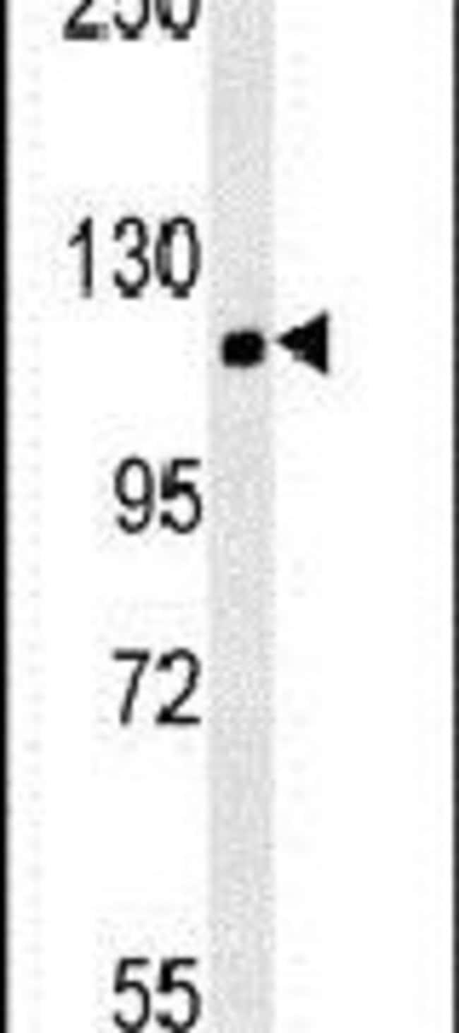 CRB2 Rabbit anti-Human, Mouse, Polyclonal, Invitrogen 400 µL; Unconjugated
