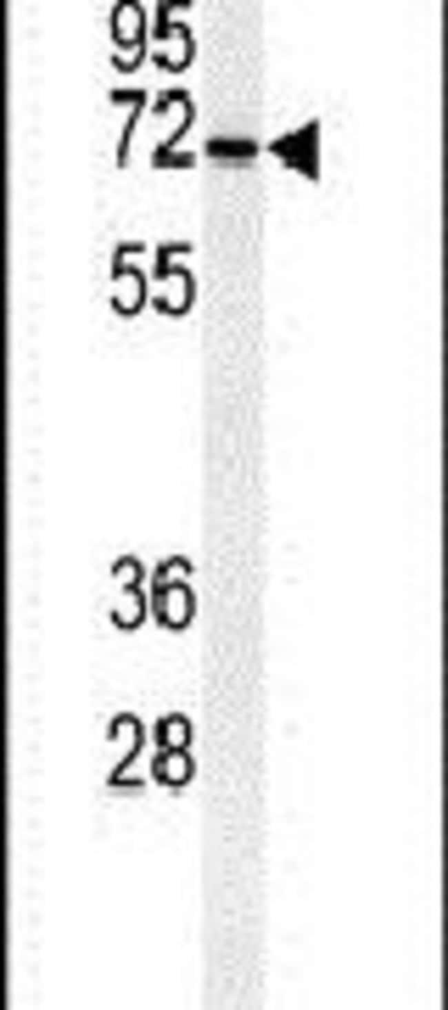 CSGALNACT1 Rabbit anti-Human, Mouse, Polyclonal, Invitrogen 400 µL;