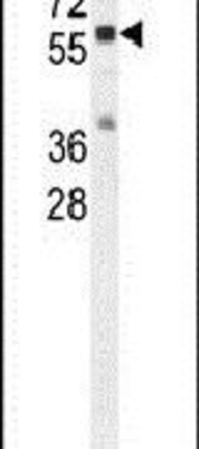 Cathepsin A Rabbit anti-Human, Mouse, Polyclonal, Invitrogen 400 µL;
