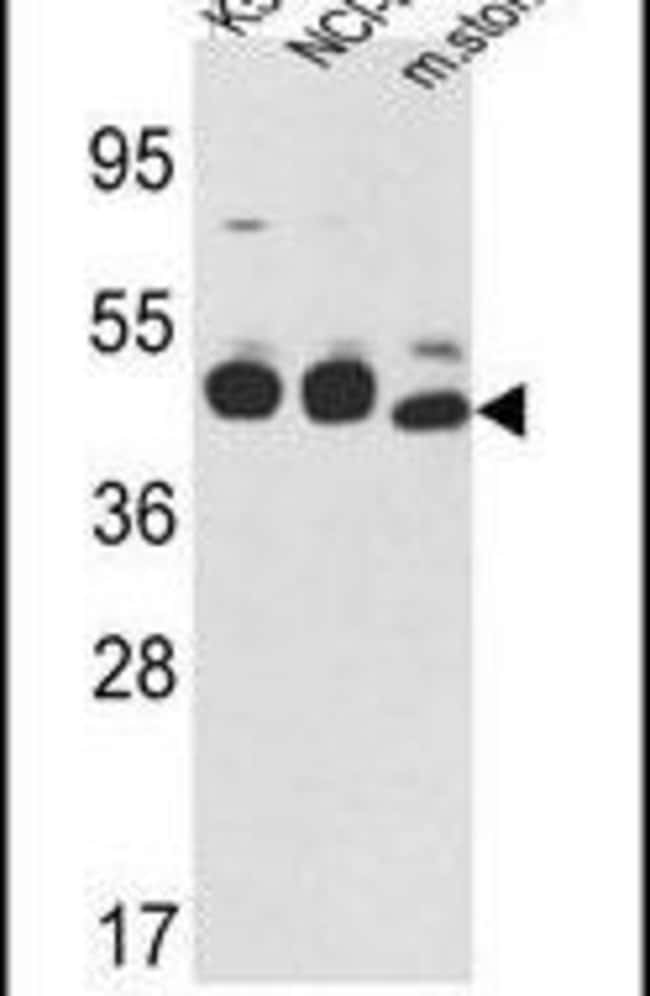Cytokeratin 18 Rabbit anti-Human, Mouse, Polyclonal, Invitrogen 400 µL;