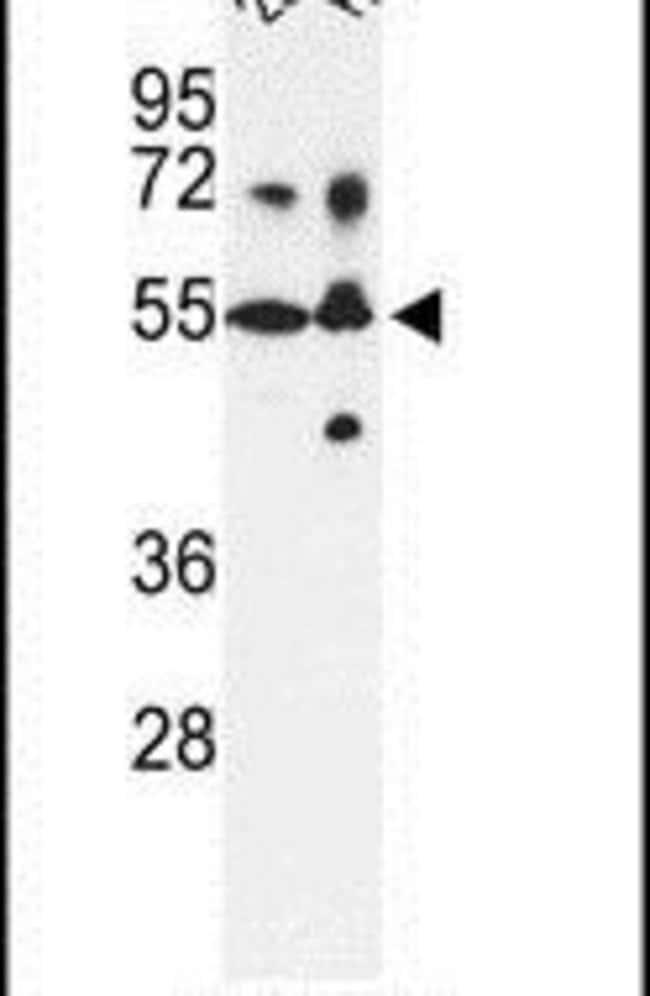 CYP21A2 Rabbit anti-Human, Polyclonal, Invitrogen 400 µL; Unconjugated